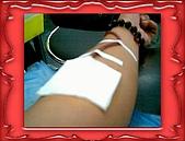 布丁1(2007~2009):布丁拔捐血17
